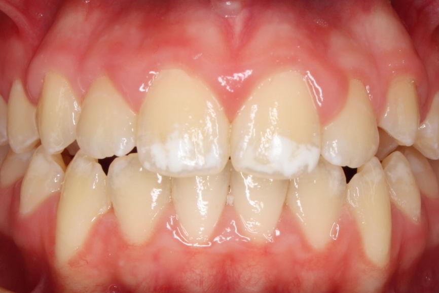 Ipomineralizzazione: un rischio in aumento per i denti dei più piccoli